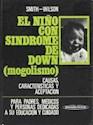NIÑO CON SINDROME DE DOWN MOGOLISMO CAUSA CARACTERISTIC